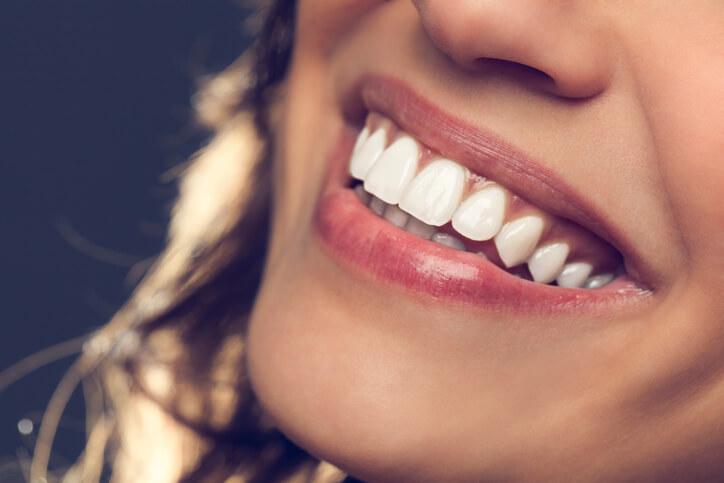 lip line treatment